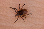 Tick ( Ixodes ricinus ) on human skin